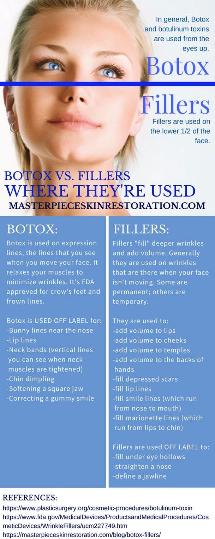 The-Basics-of-Botox