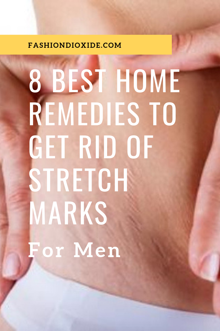 Best-Home-Remedies-To-Get-Rid-Of-Stretch-Marks-For-Men